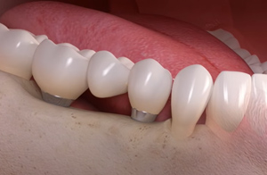 implant dents