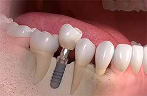 implant simple dents